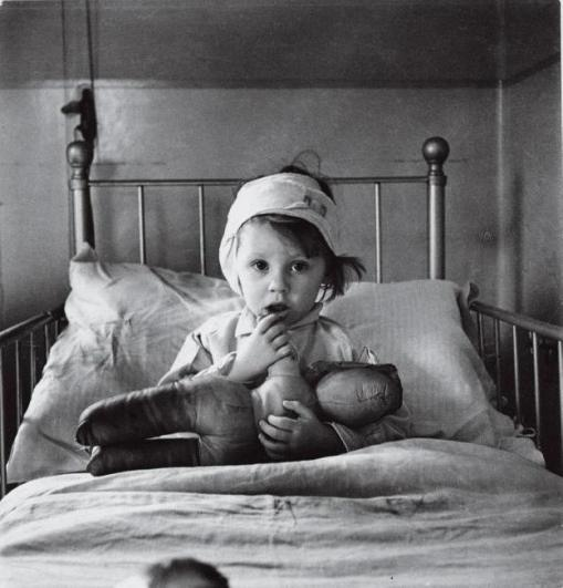 Cecil Beaton photo of a child injured in the London Blitz (Nazi bombing), 1940